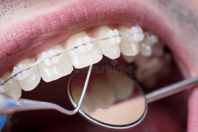 Dentista che controlla sui denti con i sostegni ceramici facendo uso degli strumenti dentari - sonda e specchio fotografia stock