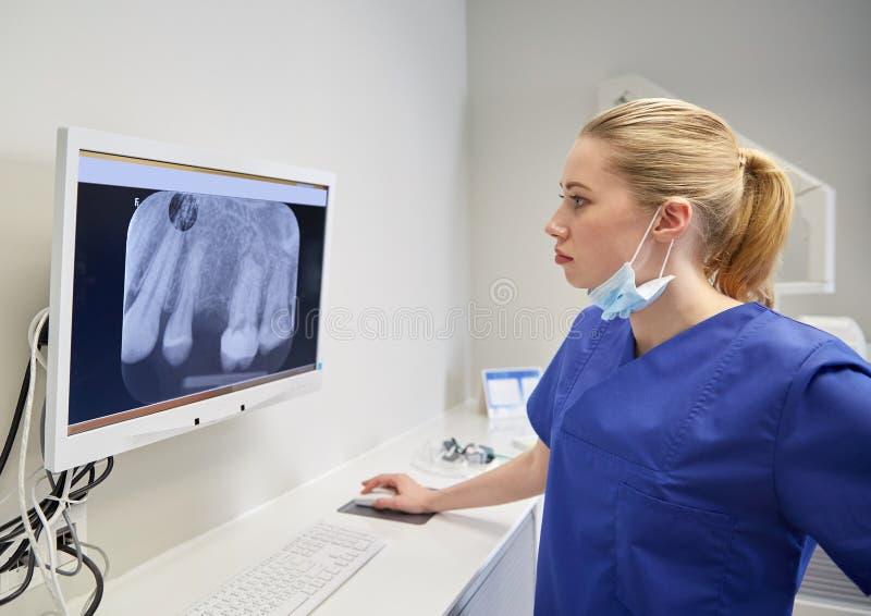 Dentista com raio X no monitor na clínica dental imagens de stock royalty free