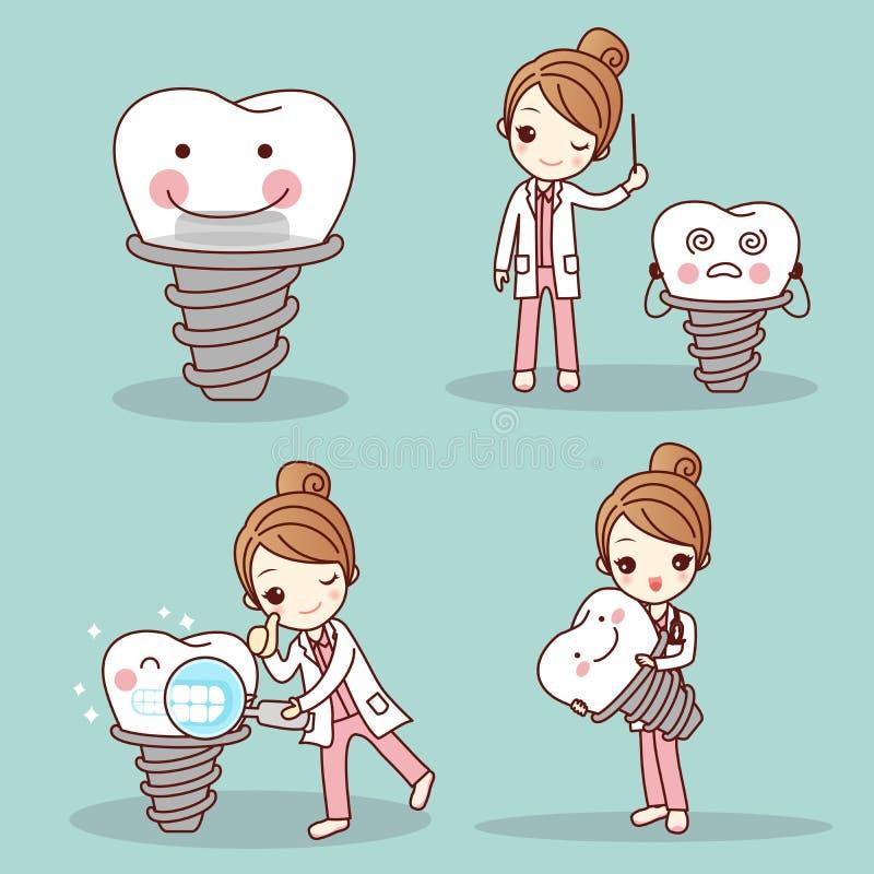 Dentista de la mujer con el implante del diente stock de ilustración