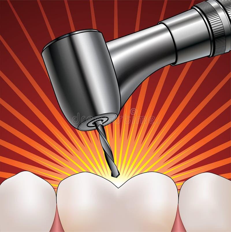 Dentista Drilling Tooth ilustración del vector