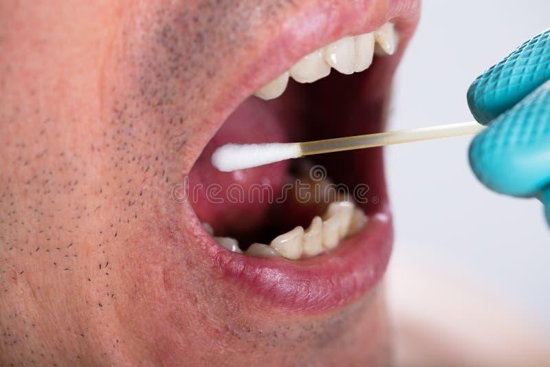 Dentista Making Saliva Test en la boca con la esponja de algodón imagen de archivo libre de regalías