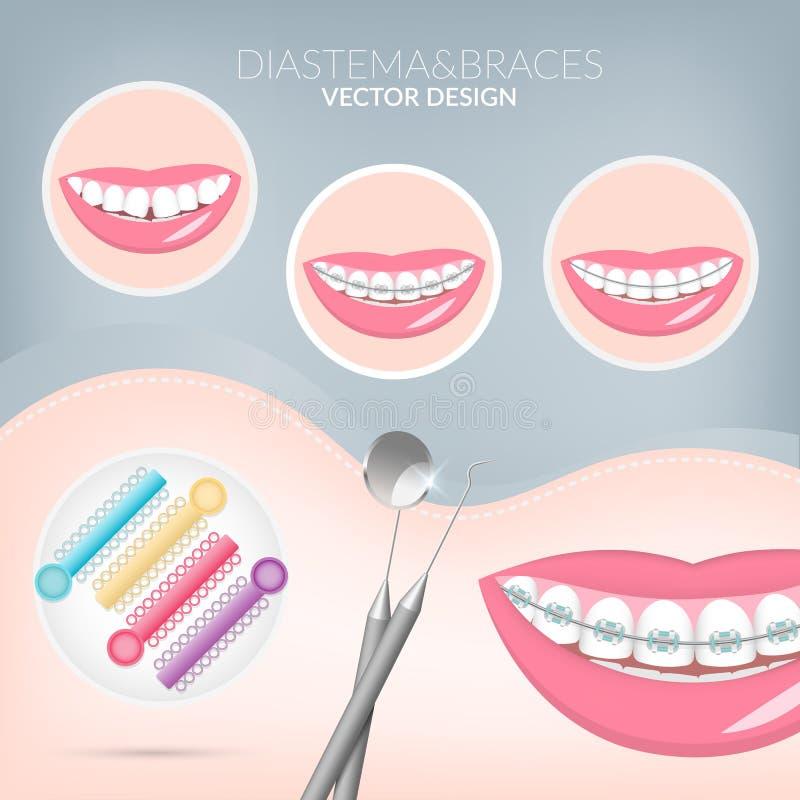 Dentista, orthodontist apoyos sanos y dentales de Teeth ilustración del vector