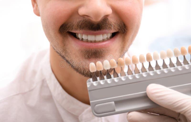 Dentista que comprueba el color de los dientes del hombre joven imagenes de archivo