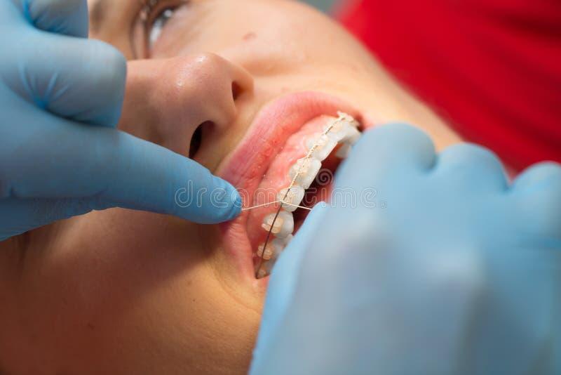 Dentista que comprueba el soporte en los apoyos en el paciente femenino Primer Gente verdadera imagen de archivo libre de regalías