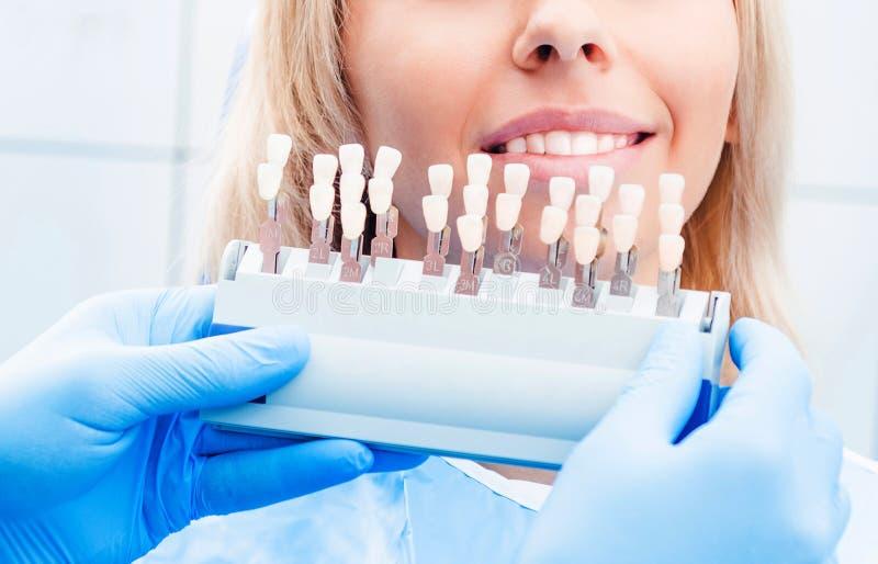 Dentista que sostiene la paleta de colores de los dientes fotografía de archivo libre de regalías
