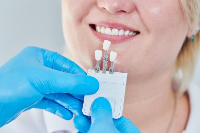 dentistry cor de harmonização do esmalte de dente com carta do alvejante imagem de stock royalty free