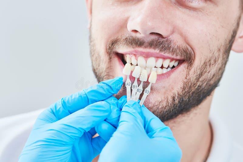 dentistry matcha färg av tandemaljen med blekmedel kartlägga royaltyfria bilder
