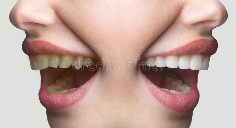 Dentistry white smile concept, before and after, teeth whitening. Female smile on funny face, advertisement for dentist royalty free stock image