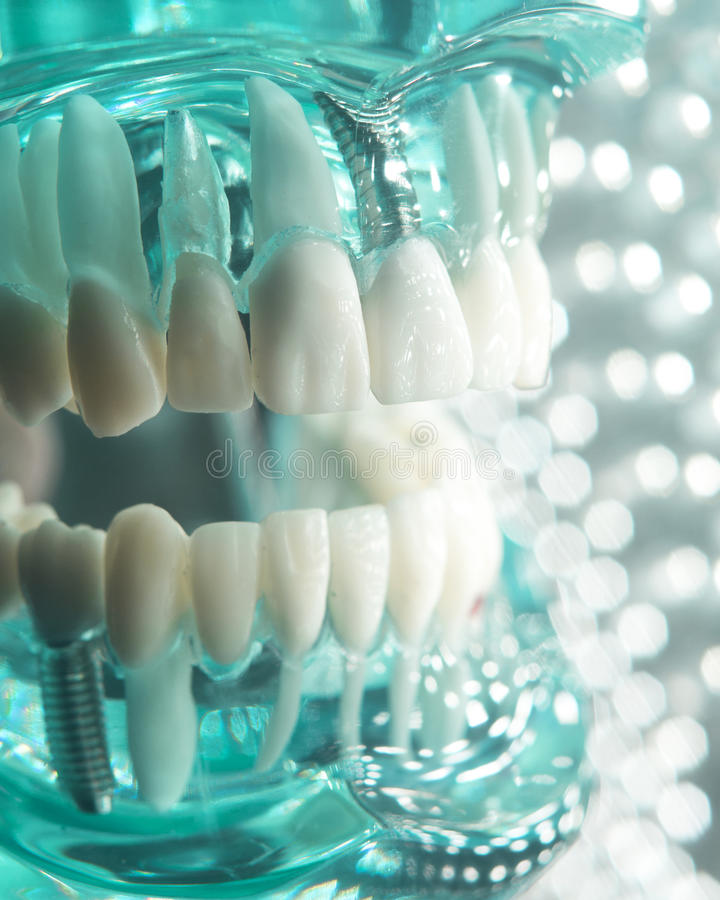 Dentists dental teeth implant. Dentists dental teeth teaching model showing each tooth, gum, root, implant, decay, plaque and enamel stock photography