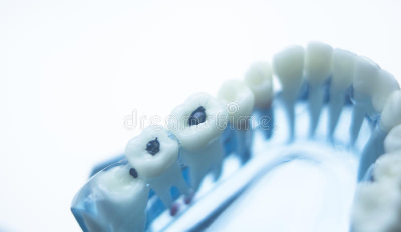 Dentists dental teeth model. Dentists dental teeth teaching model showing each tooth, gum, root, implant, decay, plaque and enamel royalty free stock photos