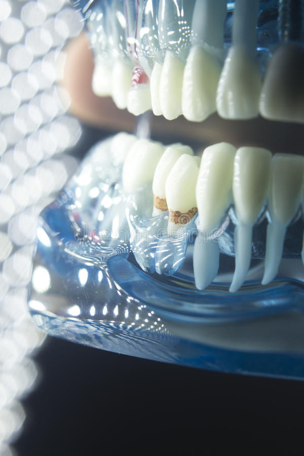 Dentists dental teeth model. Dentists dental teeth teaching model showing each tooth, gum, root, implant, decay, plaque and enamel royalty free stock images