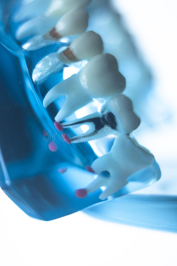 Dentists dental teeth model. Dentists dental teeth teaching model showing each tooth, gum, root, implant, decay, plaque and enamel royalty free stock photo
