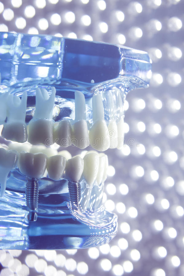 Dentists dental teeth model. Dentists dental teeth teaching model showing each tooth, gum, root, implant, decay, plaque and enamel royalty free stock image
