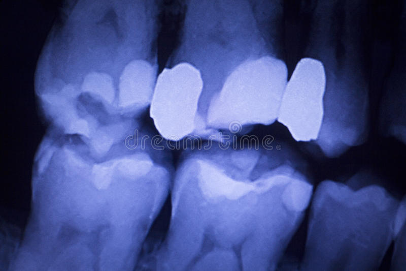 Dentists dental teeth xray. Dentists dental teeth x-ray showing tooth fillings image stock image