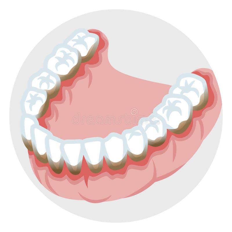 Dentition av den lägre käken - tandrot- sjukdom stock illustrationer