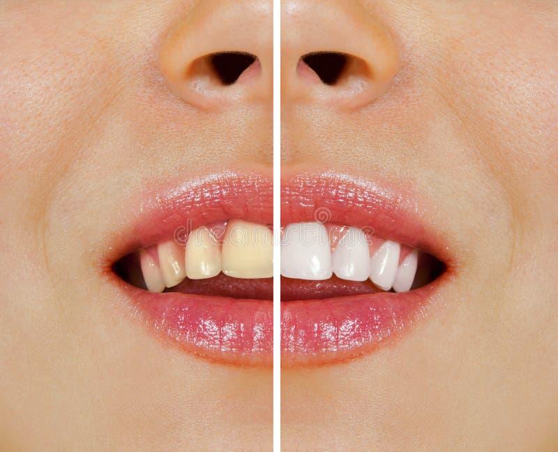 Dents avant et après le blanchiment images stock