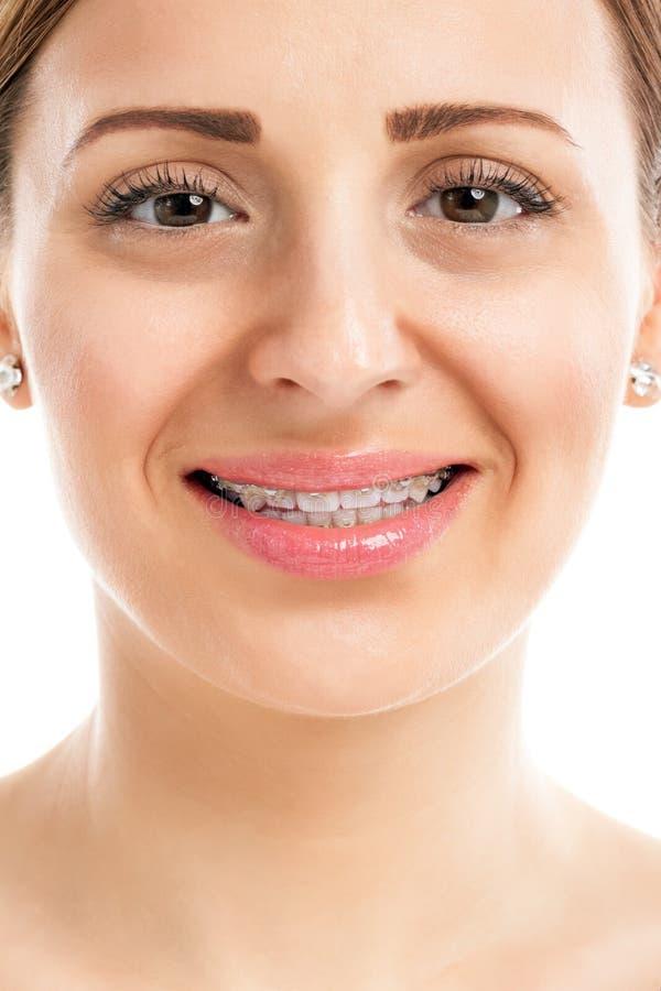 Dents avec des accolades image stock