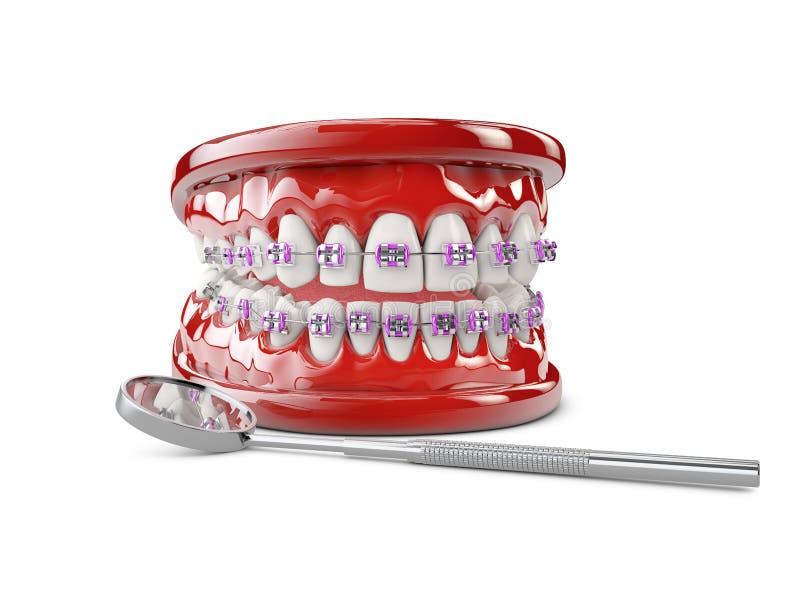Dents avec des parenth?ses, illustration du concept 3d de soins dentaires photographie stock libre de droits