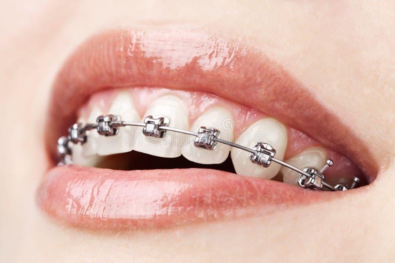 Dents avec des supports images libres de droits