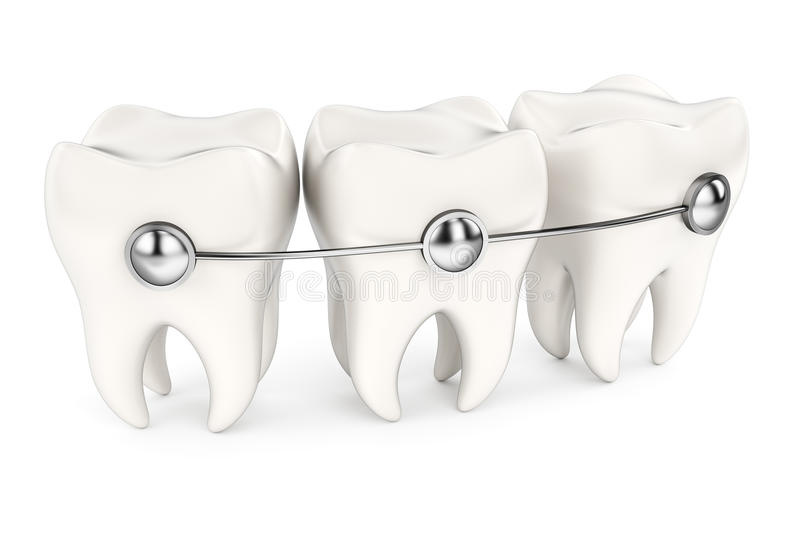 Dents avec des supports illustration libre de droits