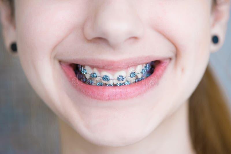 Dents avec des supports photos libres de droits