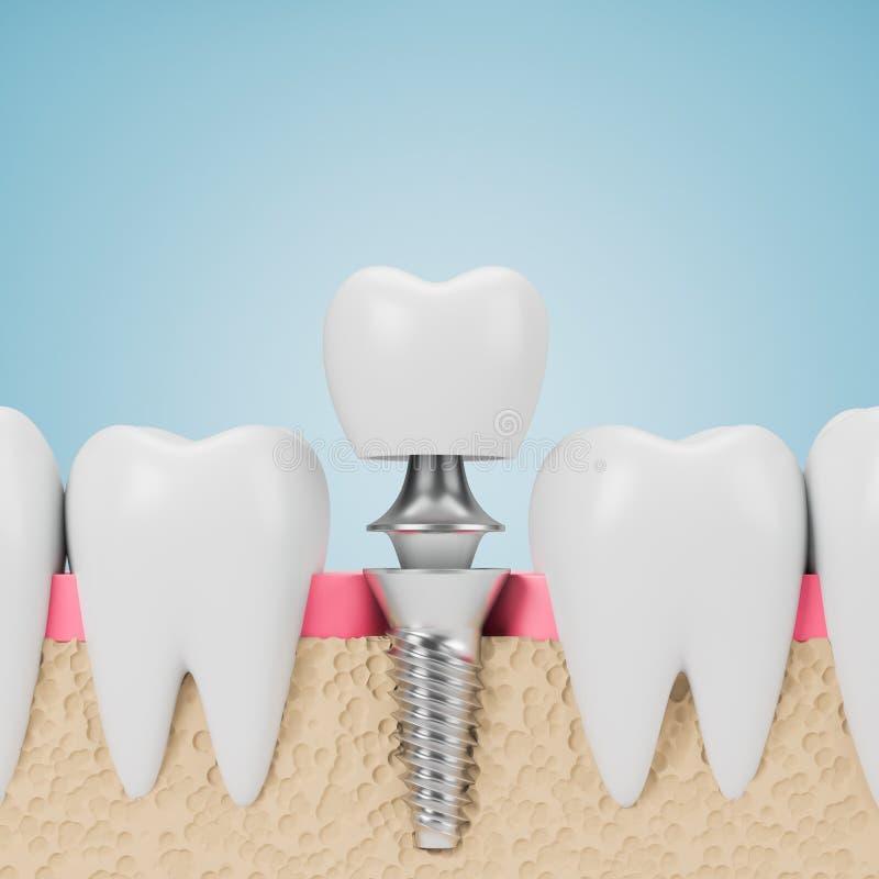 Dents avec la vis d'implant, fond bleu illustration stock