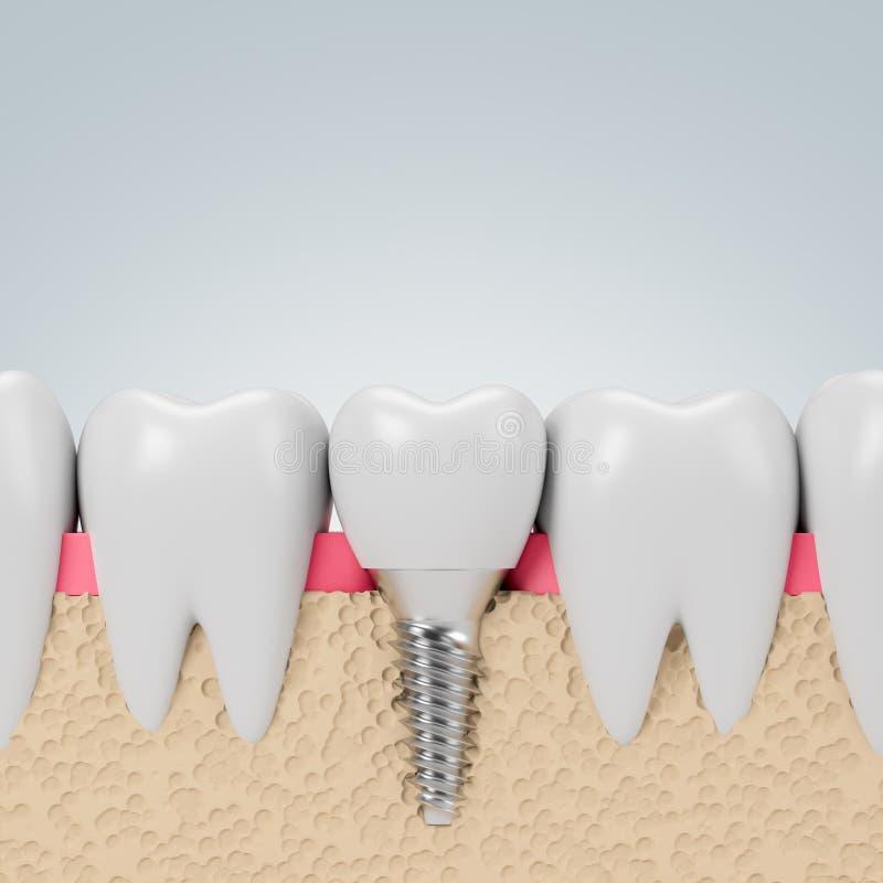 Dents avec la vis d'implant, fond gris illustration libre de droits