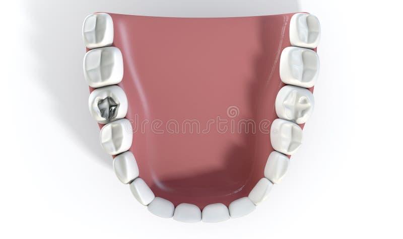 Dents avec le remplissage d'avance photos libres de droits