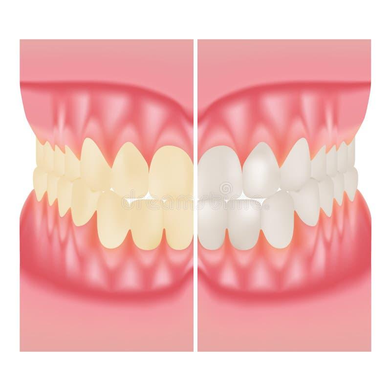 Dents blanchissant Soin dentaire Avant et après la vue des dents blanchissant d'isolement sur un fond blanc Illustration de vecte illustration de vecteur