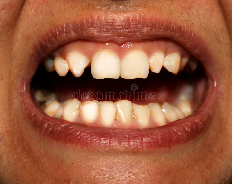 Dents courbées orthodonties Sous-développement et défauts des dents images stock