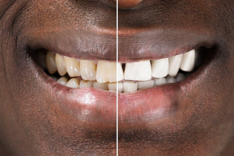 Dents d'homme avant et après le blanchiment photo libre de droits