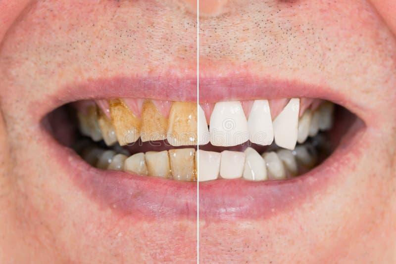 Dents d'homme avant et après le blanchiment images libres de droits