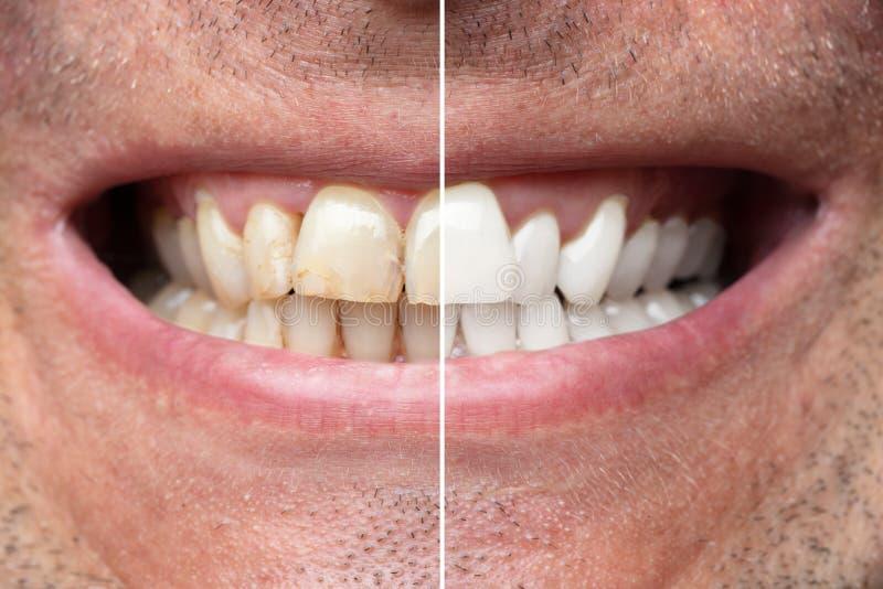 Dents d'homme avant et apr?s le blanchiment photographie stock