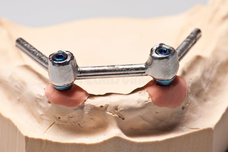 Dents d'implant dentaire sur la mâchoire inférieure squelettique images libres de droits