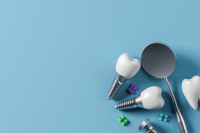 Dents d'implant et miroir, fond bleu illustration stock