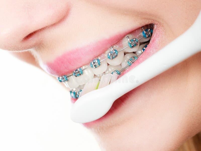 Dents de brossage de femme avec des accolades utilisant la brosse photographie stock