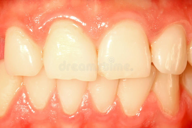 Dents de face photo libre de droits