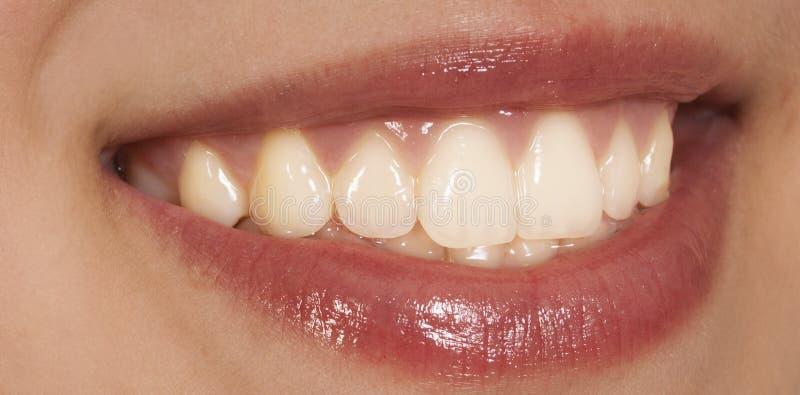 Dents de femme images stock