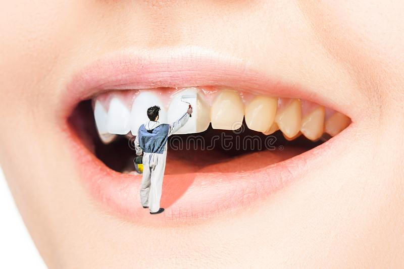 Dents de femme avant et après le blanchiment Au-dessus du fond blanc photographie stock libre de droits