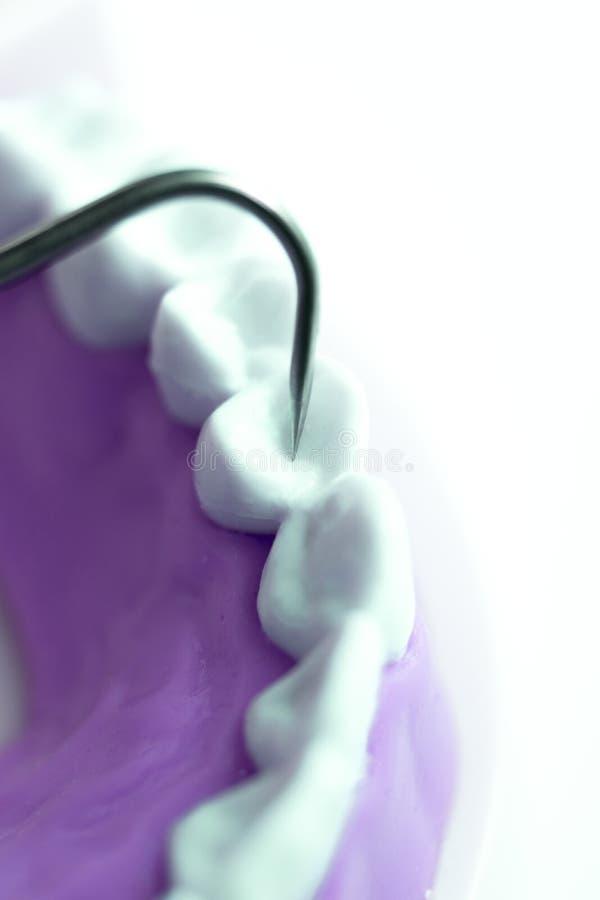 Dents de nettoyage de dentiste photographie stock libre de droits