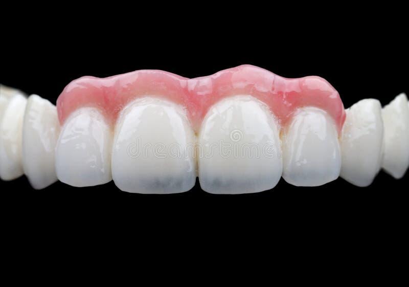 Dents de porcelaine image stock