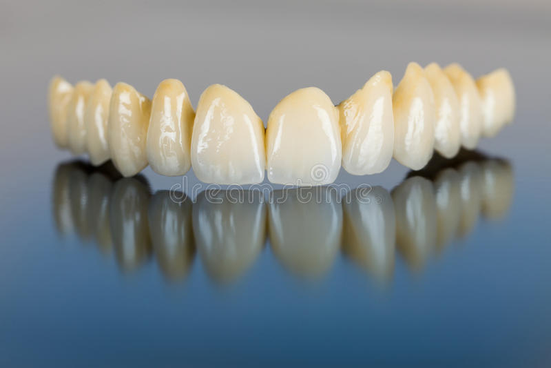 Dents de porcelaine - pont dentaire photo libre de droits