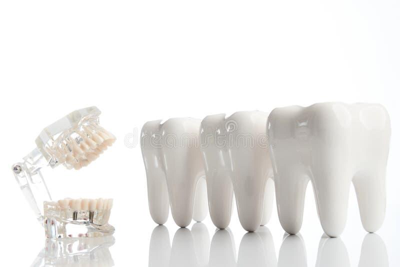 Dents dentaires modèle, modèle de mâchoire de dentier images stock