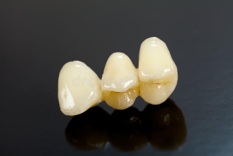 Dents en céramique appuyées photographie stock