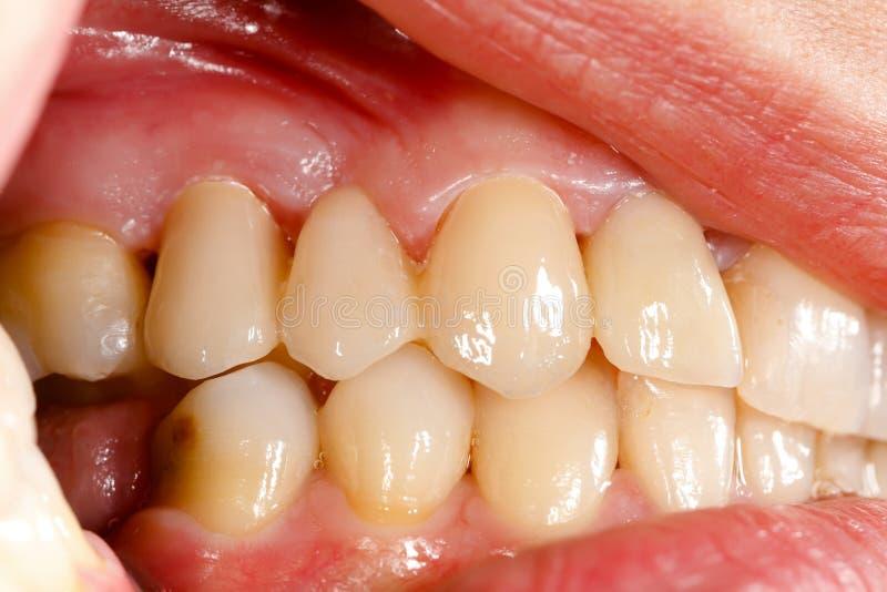 Dents en céramique appuyées en cavité buccale photo libre de droits