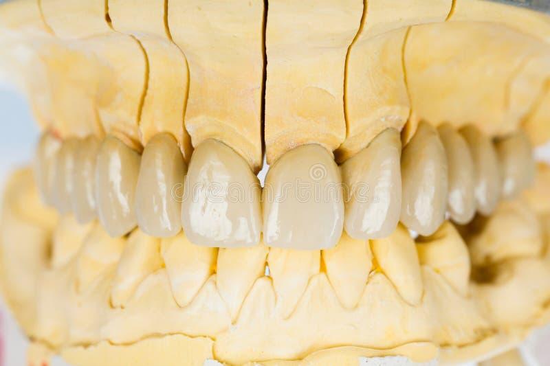 Dents en céramique - pont dentaire photographie stock