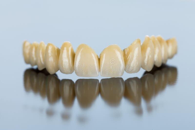 Dents en céramique - pont dentaire images libres de droits
