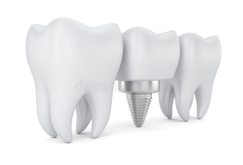 Dents et implant dentaire illustration stock