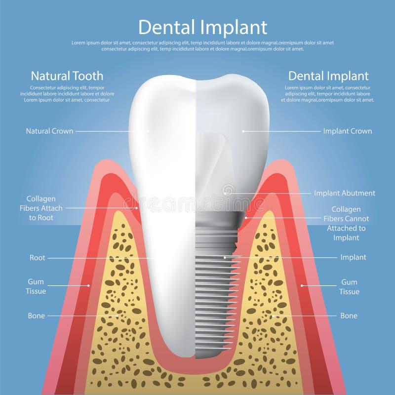 Dents humaines et implant dentaire illustration de vecteur