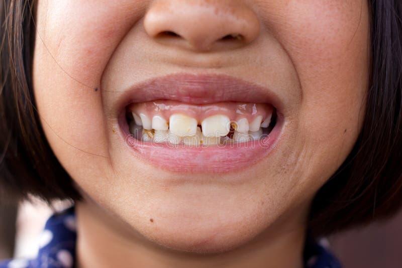 Dents malsaines photo libre de droits